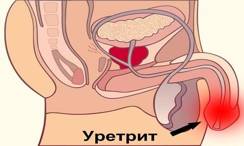 Препарат Амоксил 500 помогает при уретрите