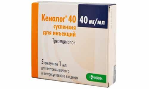 Торговое название препарата может звучать так: Кеналог