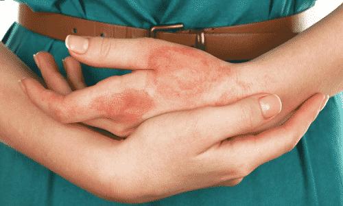 При превышении дозировок может возникнуть ожог