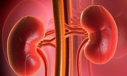 При терапии пиелонефрита учитывается тяжесть его течения
