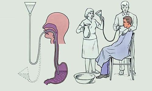 Человека с отравлением лучше отправить в больницу, где ему сделают промывание желудка