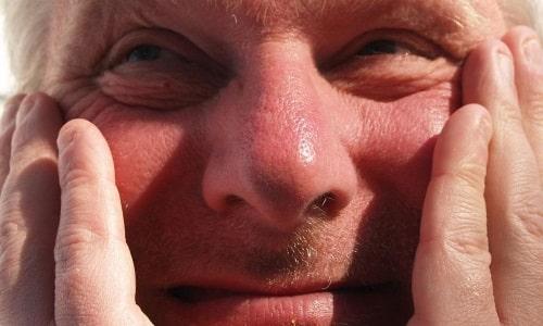 Один из наиболее частых побочных эффектов - покраснение кожных покровов