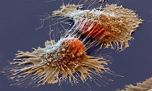 Лекарство нарушает кровоснабжение раковой опухоли, снижая скорость ее распространения