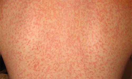 Запрещен прием препарата при инфекционной форме мононуклеоза