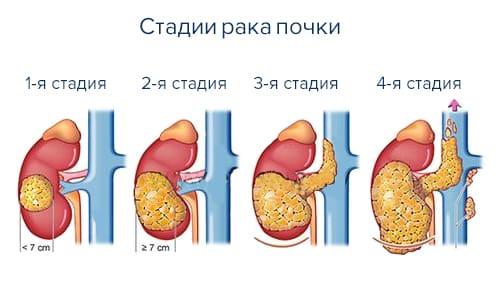 В большинстве случаев при почечно-клеточном раке назначается применение лекарства в дозировке 50 мг в сутки