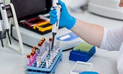 Одновременное применение кортикостероидов и цитостатиков может вызвать изменения в показателях крови