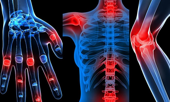 диклофенак для лечения суставов