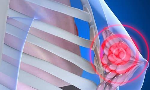 При длительном приеме препарат может предотвратить рост кист, патологических новообразований в тканях молочной железы