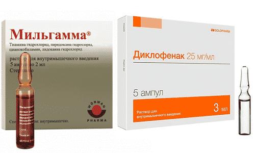 Диклофенак и Мильгамма назначают для купирования болевого синдрома, вызванного защемлением нервных окончаний или развитием воспалительного процесса