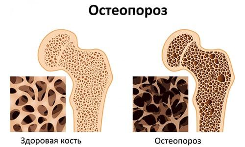 Средство назначается при остеопорозе