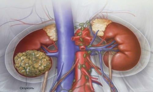 В случае лечения прогрессирующего рака почки нет стандартной терапевтической схемы