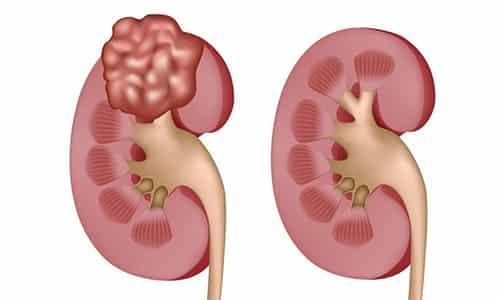 Нимесулида оказывает эффект ингибирования фактора некроза опухолей