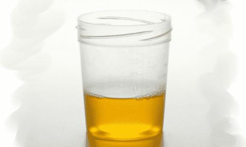 В некоторых случаях средство может окрашивать мочу в желтый цвет